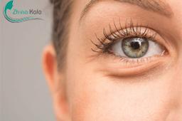 پوست اطراف چشم