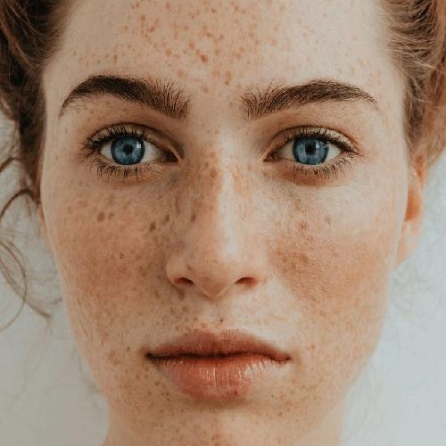 لکه های پوستی