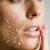 پوست-شفاف