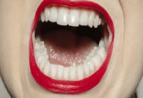 دندان-سالم